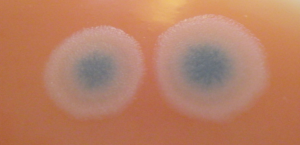 bacillus cereus2