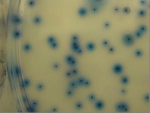 Inconfundibles colonias añil (no violetas ni esmeralda) de E.coli